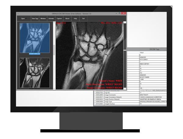 DICOM SDK | GdPicture NET DICOM Image Reader