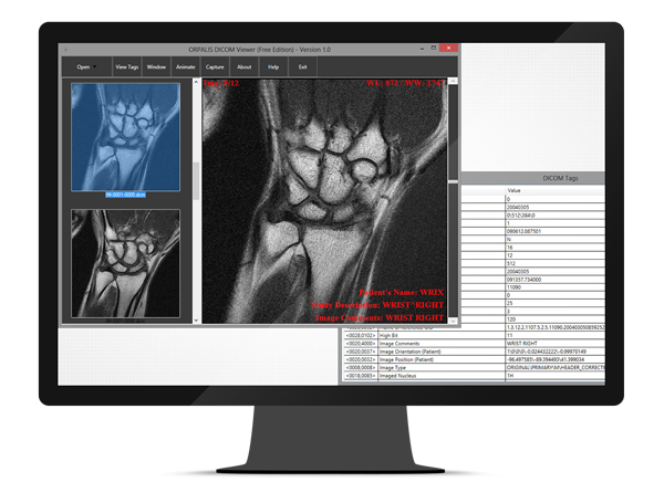 GdPicture.NET DICOM Image Reader Plugin